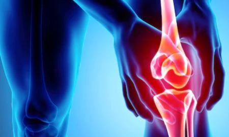 Arthritis Problem